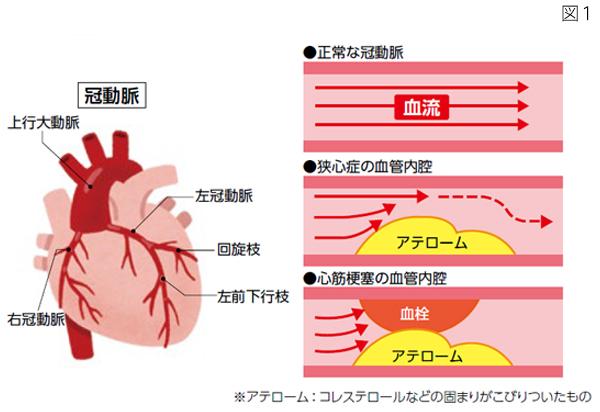 梗塞 心筋 [34] 心筋梗塞、狭心症-その予防と治療