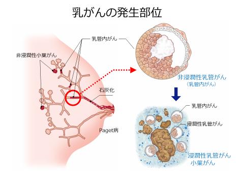 乳がん | がん診療 | 済生会横浜市南部病院