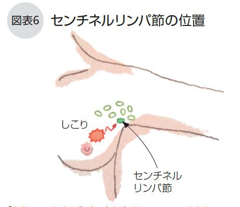 節 転移 余命 乳癌 リンパ